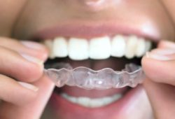 Update Harga Retainer Gigi (Fixed & Removable)