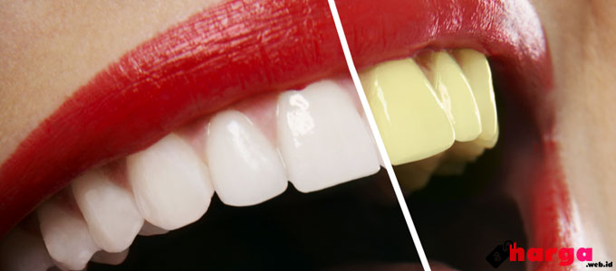 Cara Pemakaian Harga Produk White Light Pemutih Gigi Di Apotek