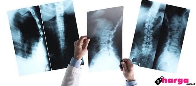 Biaya X-Ray (Rontgen) Tulang Belakang Untuk Penderita Nyeri Punggung