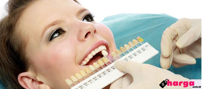 Info Terbaru Biaya Memutihkan Gigi Dengan Teknik Whitening Bleaching
