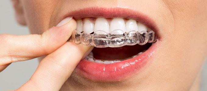 Inilah Cara Kerja Aligner Sebagai Perapi Gigi Tonggos