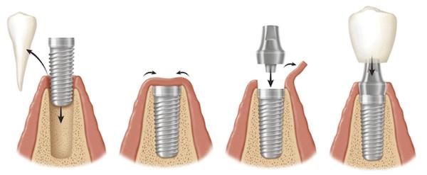 Komponen Biaya Implan Gigi dan Prosedurnya