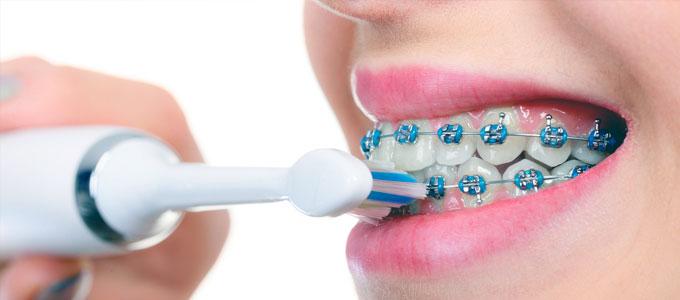 Harga Sikat Gigi Khusus Behel Orthodontic Daftar Harga Tarif